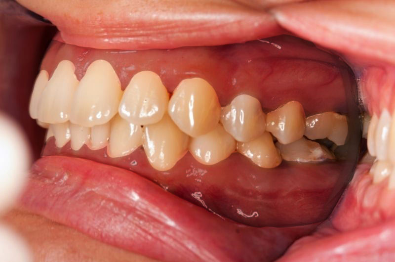 What makes your gums darker?