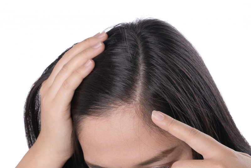 A woman is showing her healthy scalp, a benefit after using Reishi mushrooms for hair health.