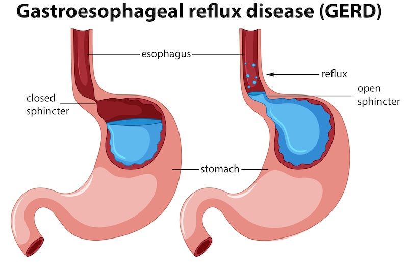 GERD acid reflux disease illustration
