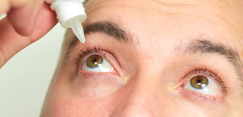 A man is putting eye drops into his eyes to relieve any allergies and to help stop his eyes from pulsating.