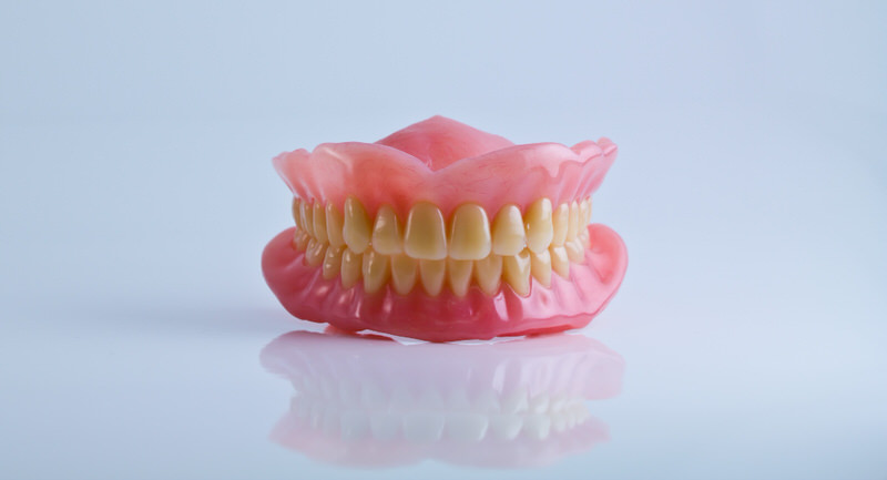 Imperfect tooth alignment causing Bruxism.