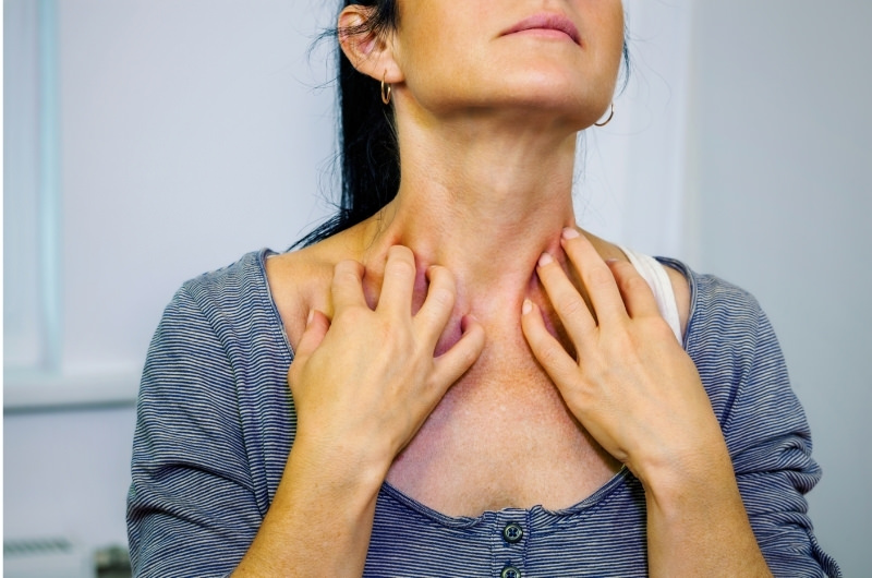 Can You Exercise With Shingles?