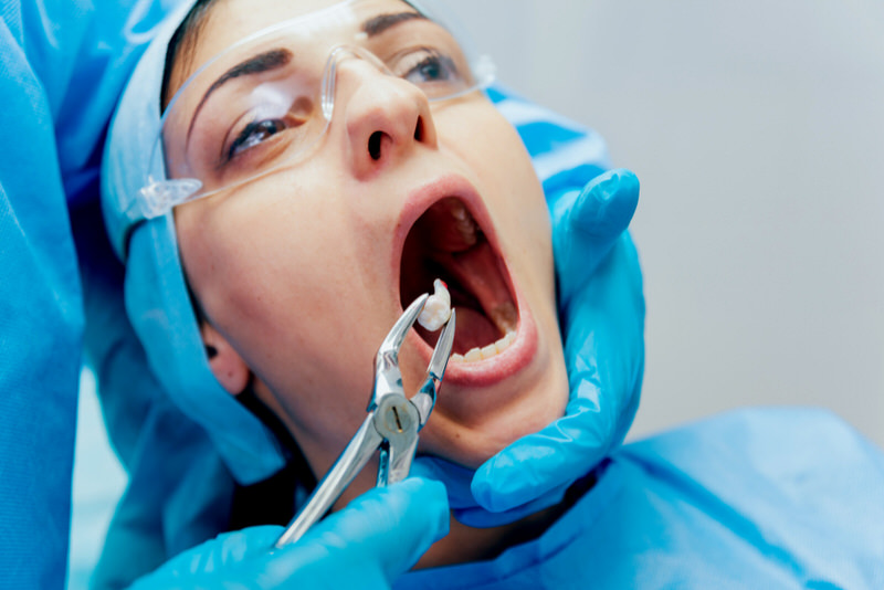 A woman is at the dentist getting one of her molar teeth extracted.