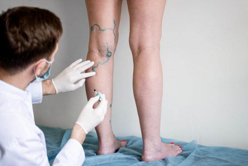 A doctor is marking the vein line on a patient for upcoming varicose vein surgery.