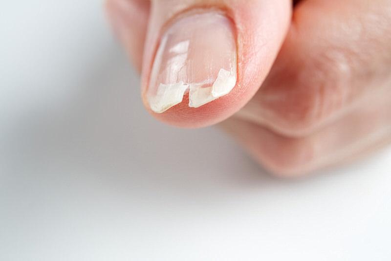 Acrylic Nail Ripped Off Real Nail! (Tips To Fix Broken Acrylic Nail)