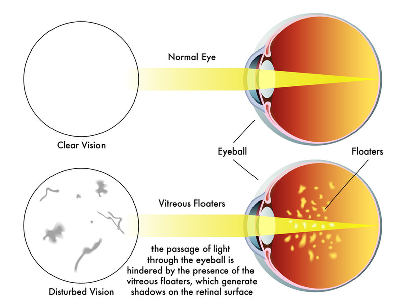A graphic showing the difference between a clear vision and one where you have floaters in your vision.