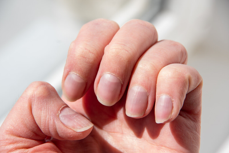 Why Are My Nails Clear?